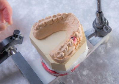 Modell_Implantat