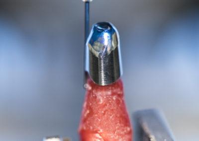 Zahnimplantat CAD CAM